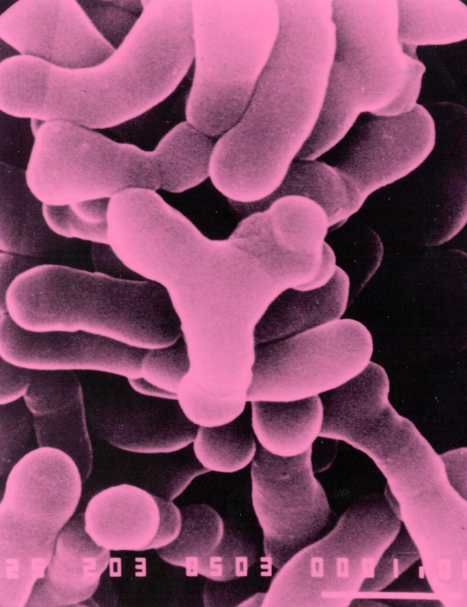 Bacteria And The Large Intestine Love Your Gut